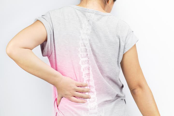 physiotherapy-CMI-Clinic-lumbar-sprain
